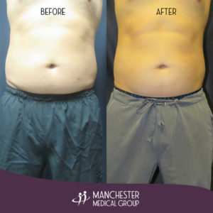 steve-sculpsure-before-after-1