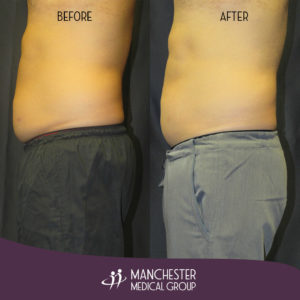 steve-sculpsure-before-after-2